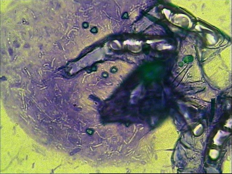 Phase 2 - Bakterienkolonie an der toten Milbe, erste Pilzsporenbildung erkennbar